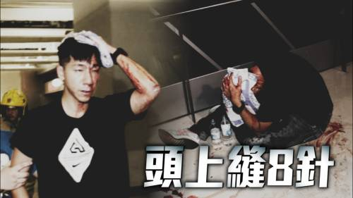 入元朗幫手遇襲   傳媒人柳俊江血流披面